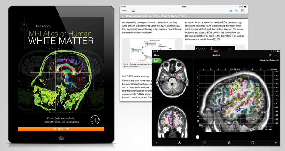White Matter App